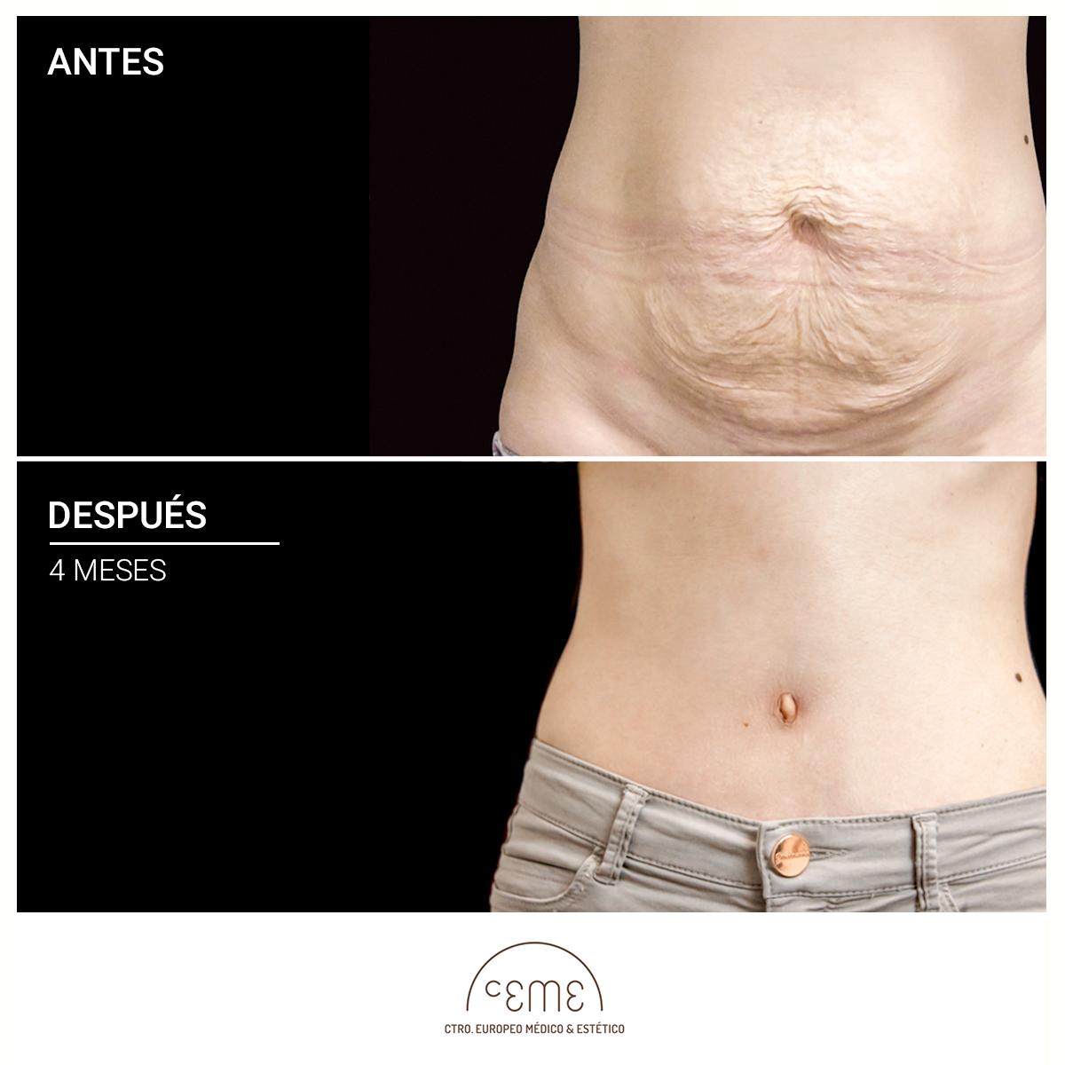 abdominoplastia resultados