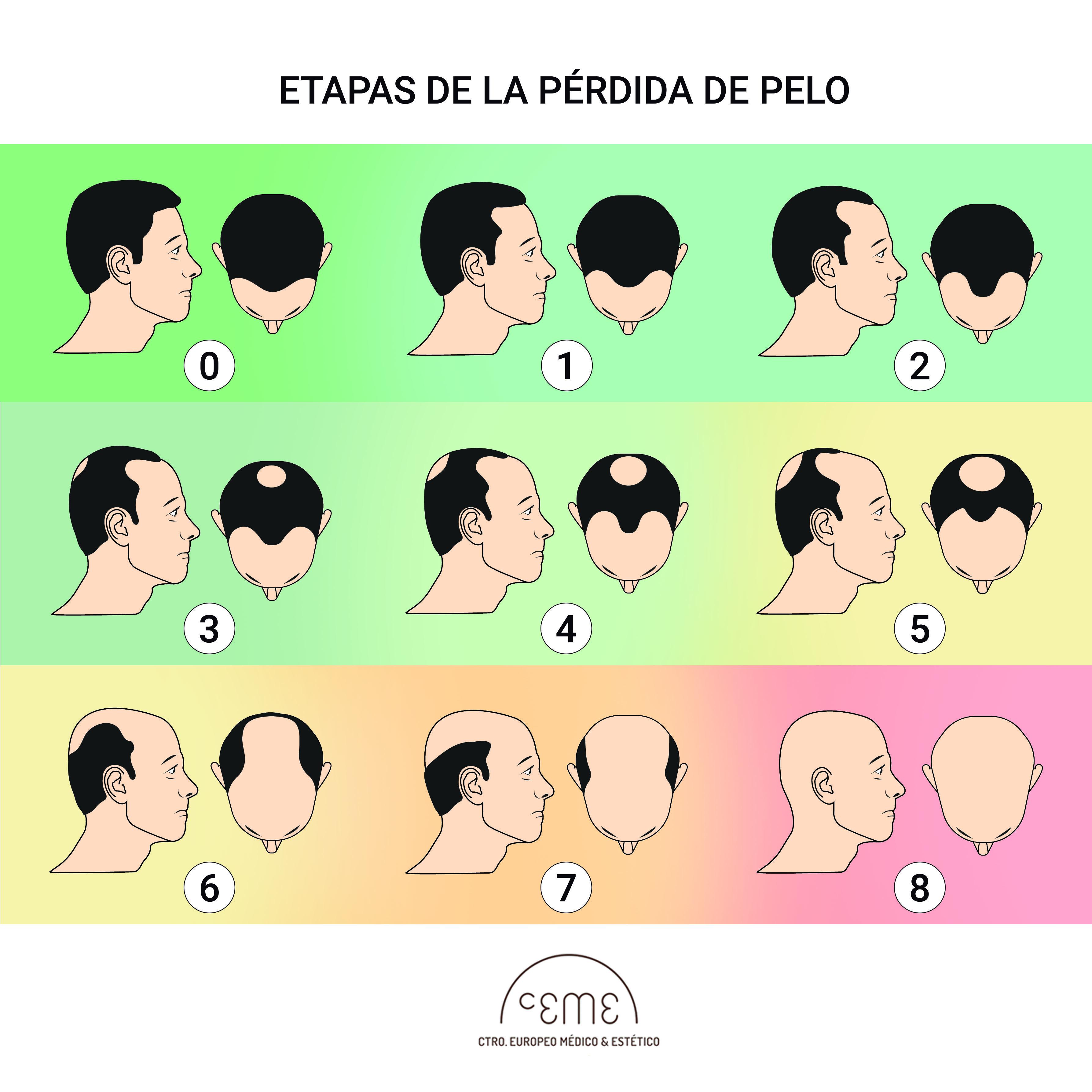 Etapas pérdida de pelo