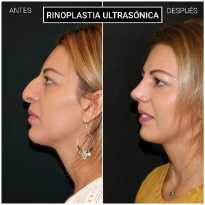 Rinoplastia ultrasónica resultados