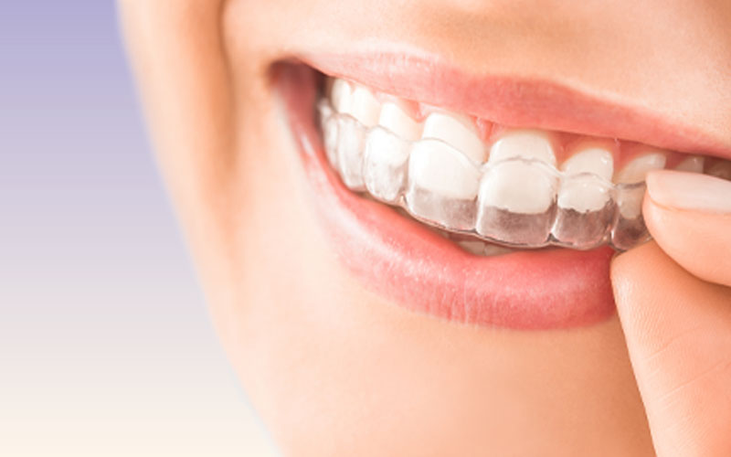 Todo sobre la ortodoncia invisible