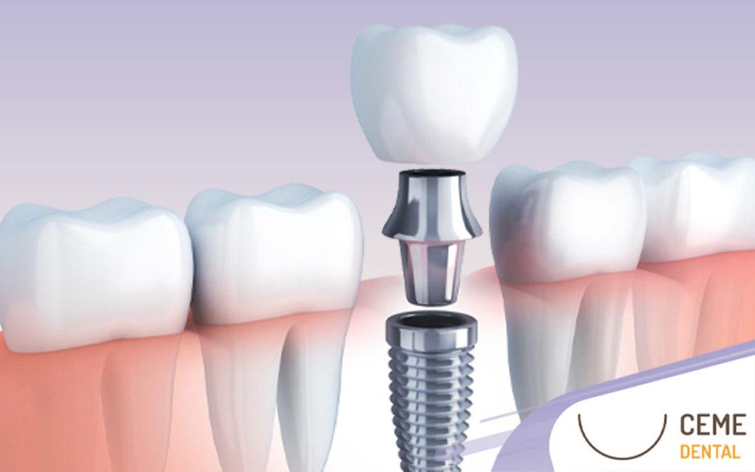 Implante Dental: Precio y todo lo que tienes que saber