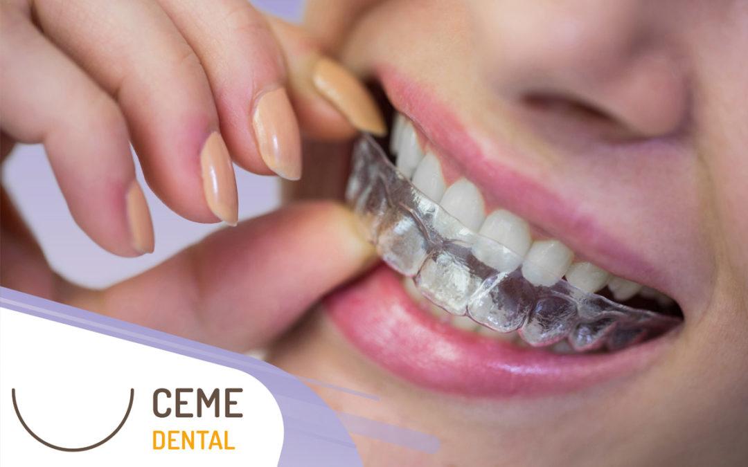 Ortodoncia Invisible: Precio y mucho Más